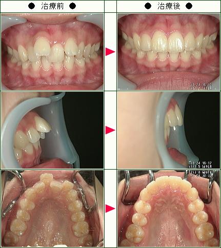 出っ歯矯正症例(15歳 女性)
