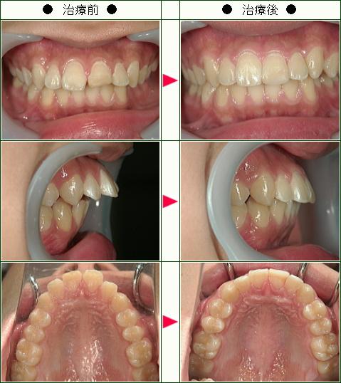 出っ歯矯正症例(17歳 男性)