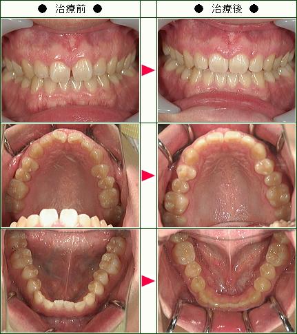 歯のデコボコ矯正症例(24歳 男性)