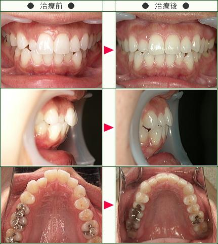 歯のデコボコ矯正症例(30歳 女性)