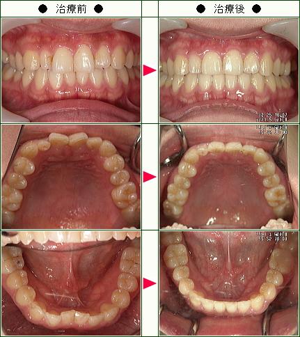 歯のデコボコ矯正症例(A・C様 30歳 女性)