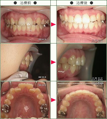歯のデコボコ矯正症例(あっちん様 26歳 女性)