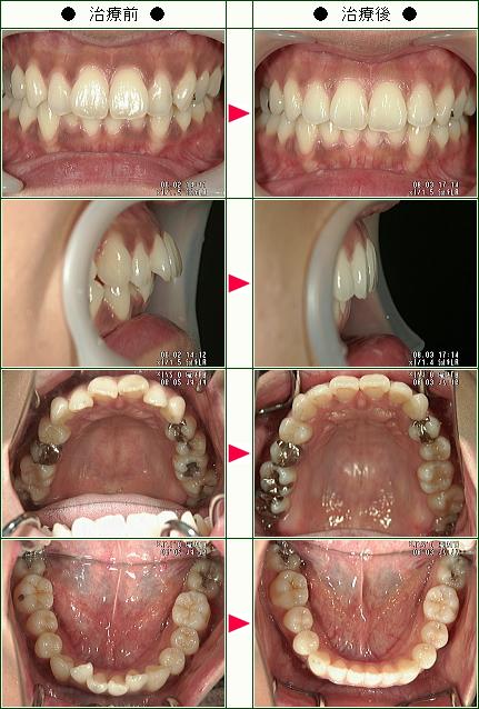 出っ歯矯正症例(あい様 29歳 女性)