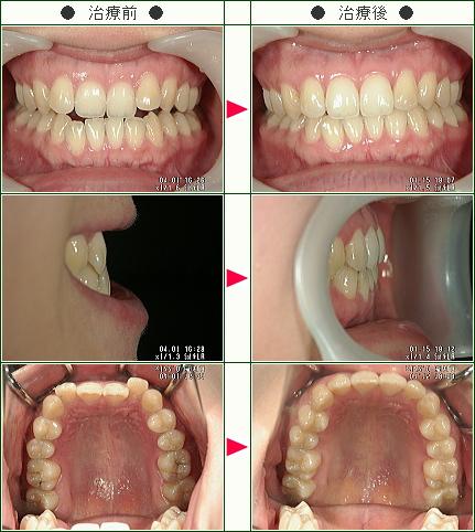 歯のデコボコ矯正症例(あい様 31歳 女性)