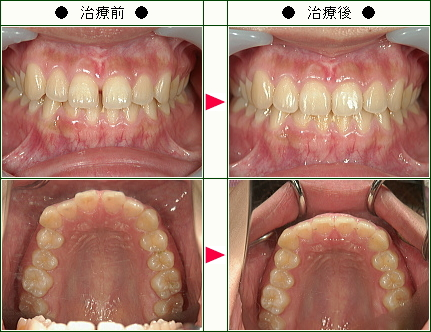 前歯のすきっ歯矯正症例(あいざわ様 22歳 女性)