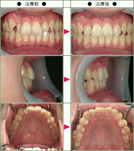 歯のデコボコ矯正症例(A.K様 31歳 男性)