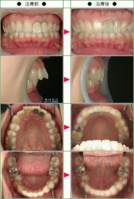 出っ歯矯正症例(A.M様 30歳 女性)