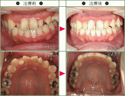 歯のデコボコ矯正症例(ami様 27歳 女性)
