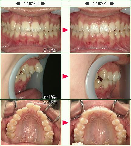 出っ歯矯正症例(A.N様 21歳 女性)