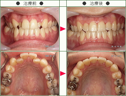 歯のデコボコ矯正症例(A.N.様 23歳 女性)