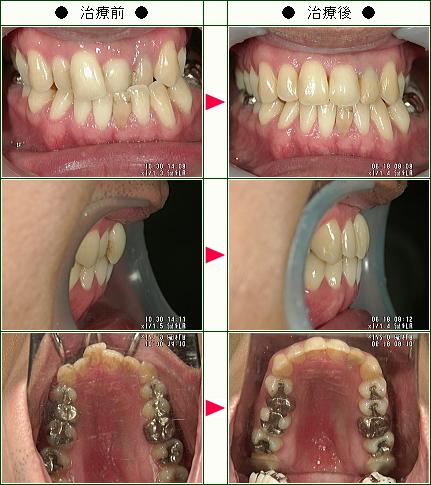 歯のデコボコ矯正症例(A・N様 33歳 男性)