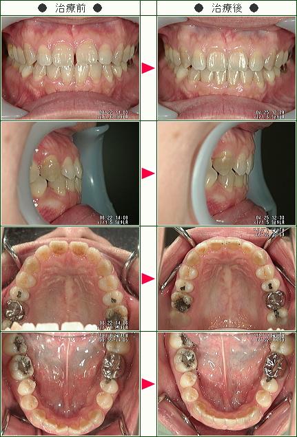 前歯のすきっ歯矯正症例(Ann様 35歳 女性)