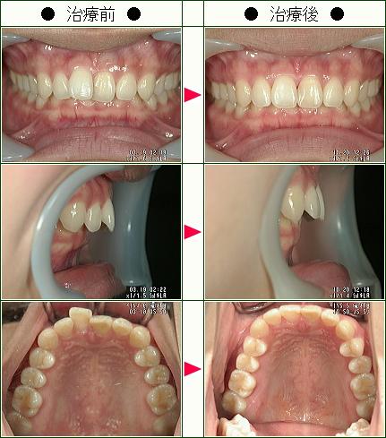 歯のデコボコ矯正症例(A.O様 24歳 女性)