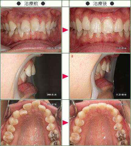 歯のデコボコ矯正症例(新井様 27歳 女性)