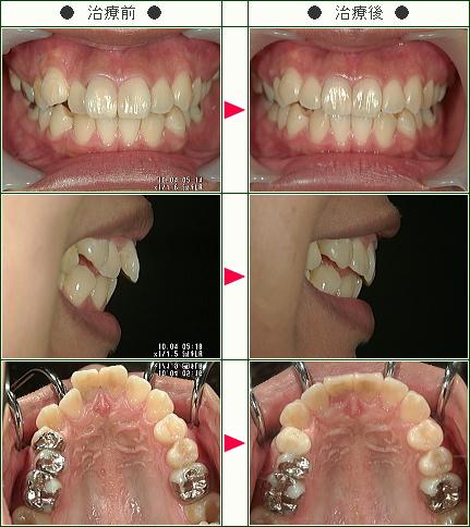 出っ歯矯正症例(A.S様 18歳 女性)