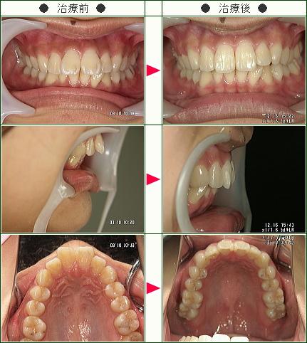 出っ歯矯正症例(A.S様 19歳 女性)