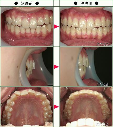 歯のデコボコ矯正症例(A.S様 21歳 女性)