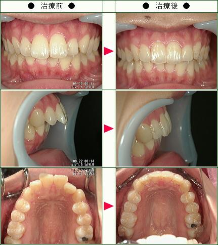 出っ歯矯正症例(A.S様 25歳 女性)