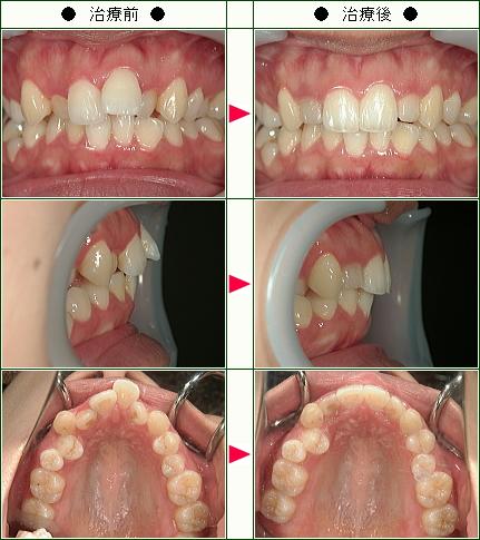 歯のデコボコ矯正症例(A.S様 27歳 女性)