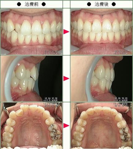 歯のデコボコ矯正症例(A・S様 33歳 女性)