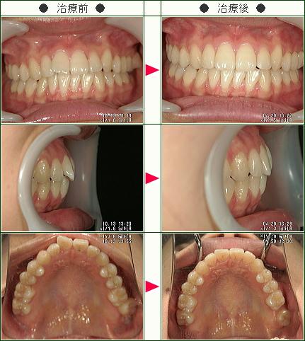 歯のデコボコ矯正症例(あすか様 22歳 女性)