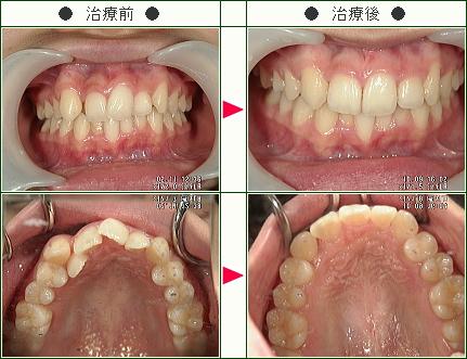 歯のデコボコ症例(A・T様 19歳 女性)