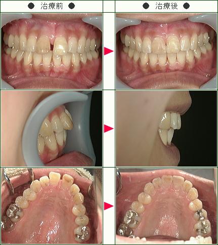 前歯のすきっ歯矯正症例(敦美様 30歳 女性)