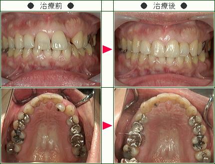 歯のデコボコ矯正症例(A.Y様 45歳 女性)