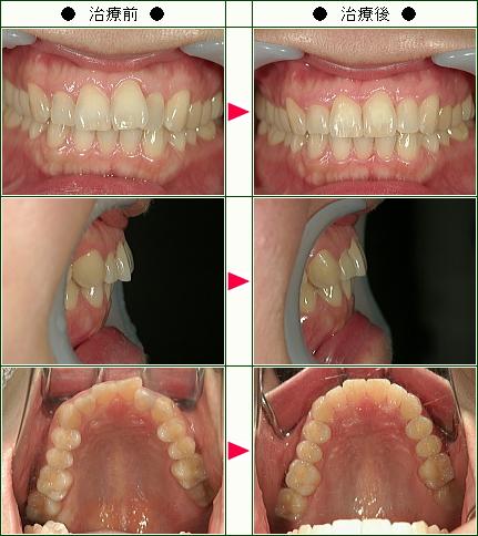 歯のデコボコ矯正症例(綾子様 36歳 女性)