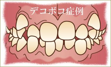 歯のデコボコ矯正治療解説