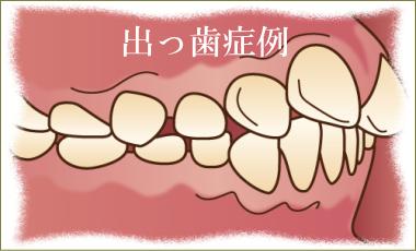 出っ歯矯正治療解説
