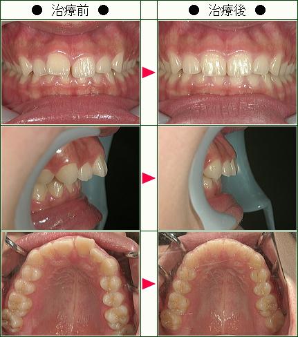 歯のデコボコ矯正症例(C.H様 18歳 女性)
