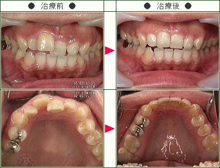 歯のデコボコ矯正症例(ちえ様 35歳 女性)