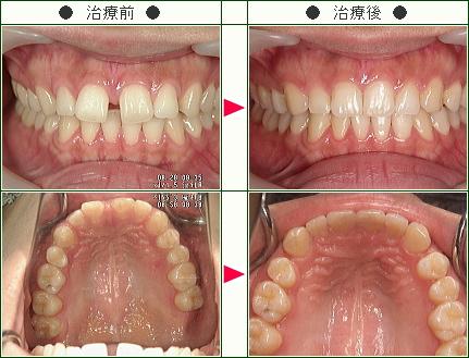 前歯のすきっ歯矯正症例(ちか様 25歳 女性)