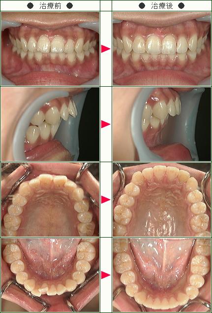 歯のデコボコ矯正症例(C.I様 23歳 女性)