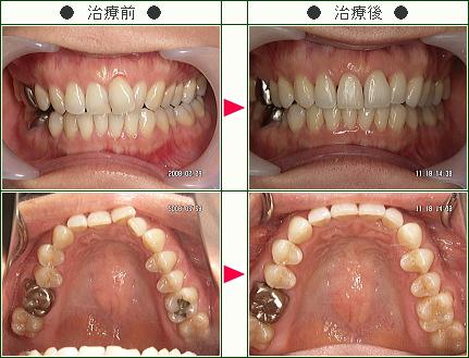 歯のデコボコ矯正症例(C.I.様 36歳 女性)