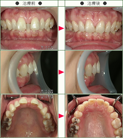 前歯のすきっ歯矯正症例(C・I様 44歳 女性)