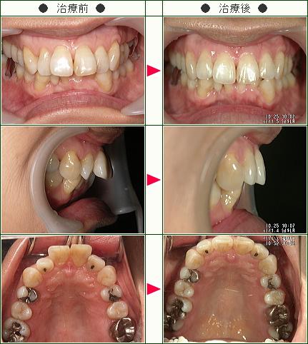 出っ歯矯正症例(C・I様 51歳 女性)