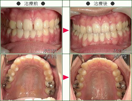 前歯のすきっ歯矯正症例(C・M様 19歳 女性)