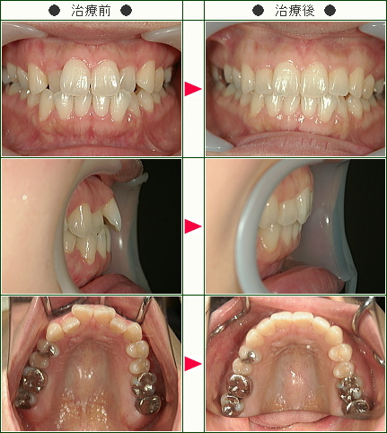 歯のデコボコ矯正症例(C.S様 38歳 女性)