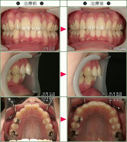 歯のデコボコ矯正症例(C.Y.様 23歳 女性)