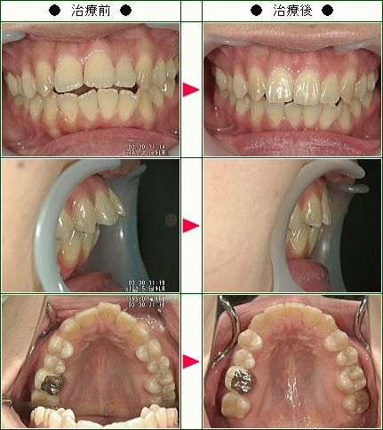 出っ歯矯正症例(伊達様 29歳 女性)