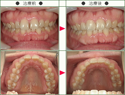 前歯のすきっ歯矯正症例(E様 39歳 女性)
