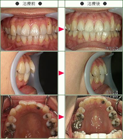 歯のデコボコ症例(えふ様 52歳 女性)