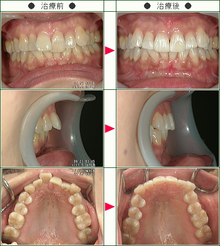 出っ歯矯正症例(E.H様 42歳 女性)