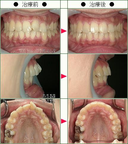 歯のデコボコ矯正症例(E・I様 28歳 女性)