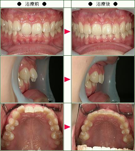 歯のデコボコ矯正症例(E.K様 25歳 女性)