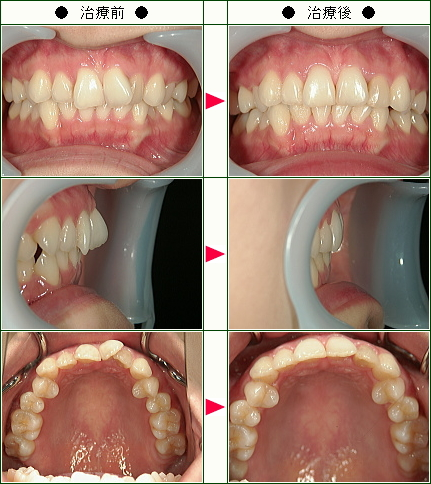 歯のデコボコ矯正症例(em様 27歳 女性)