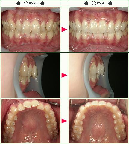 歯のデコボコ矯正症例(E.O様 28歳 女性)