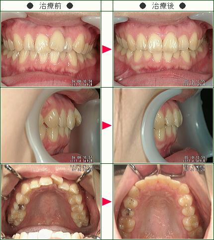 歯のデコボコ矯正症例(Eri様 24歳 女性)